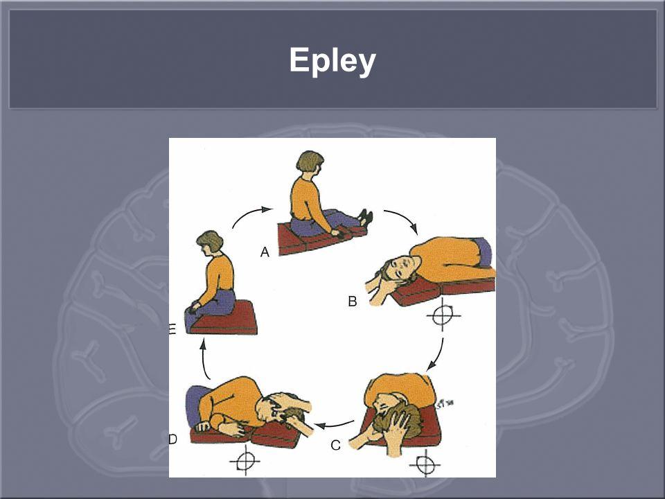 Epley
