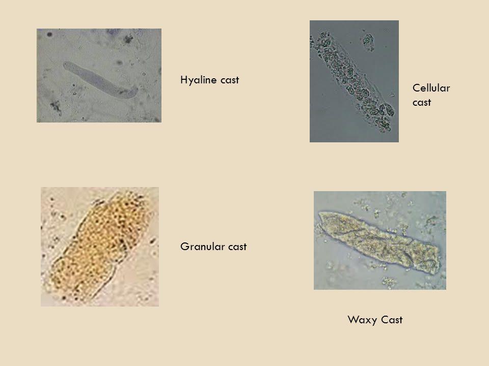 Hyaline cast Cellular cast Granular cast Waxy Cast