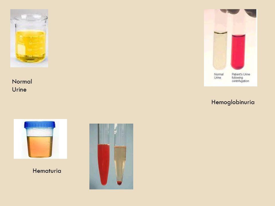 Normal Urine Hemoglobinuria Hematuria