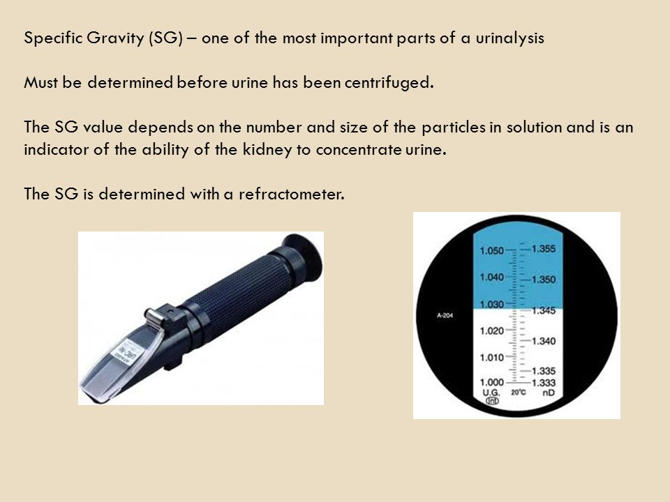 Specific Gravity (SG) – one of the most important parts of a urinalysis