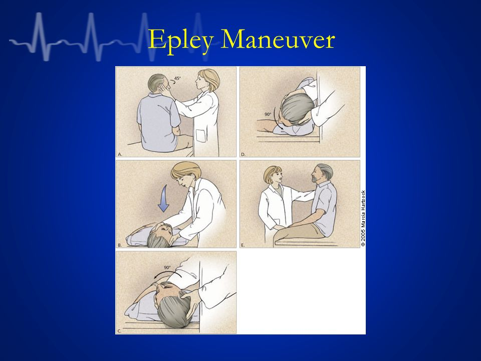 Epley Maneuver Epley maneuver illustration from Swartz R, Longwell P.