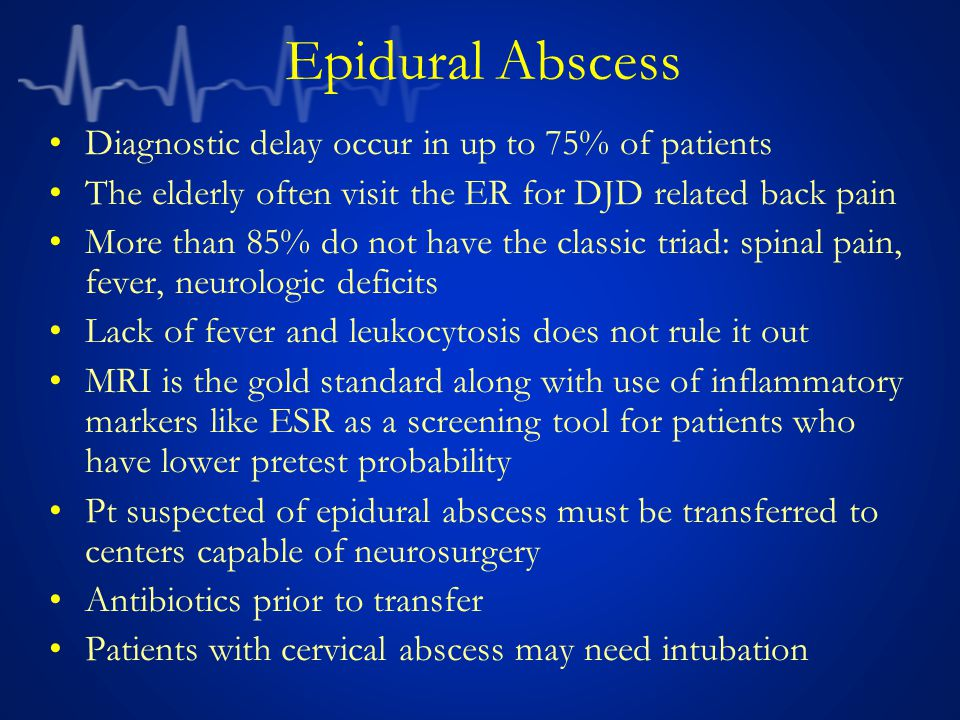 Epidural Abscess Diagnostic delay occur in up to 75% of patients