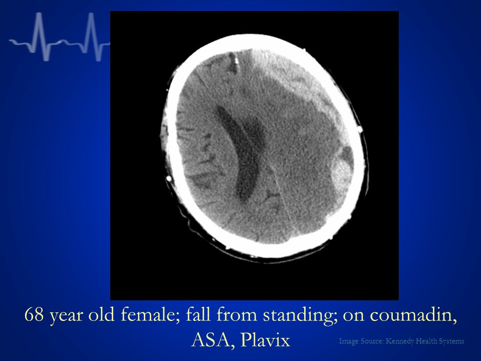 68 year old female; fall from standing; on coumadin, ASA, Plavix