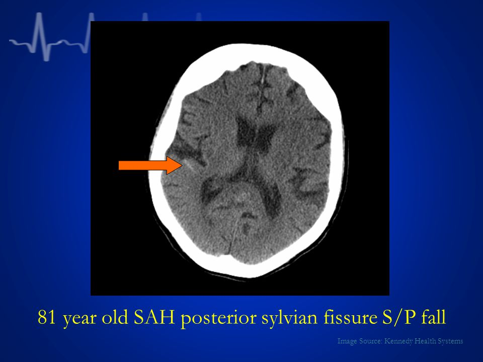 81 year old SAH posterior sylvian fissure S/P fall