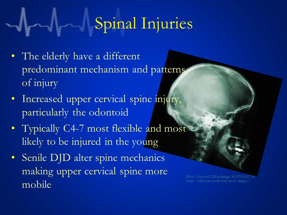 Spinal Injuries The elderly have a different predominant mechanism and patterns of injury.