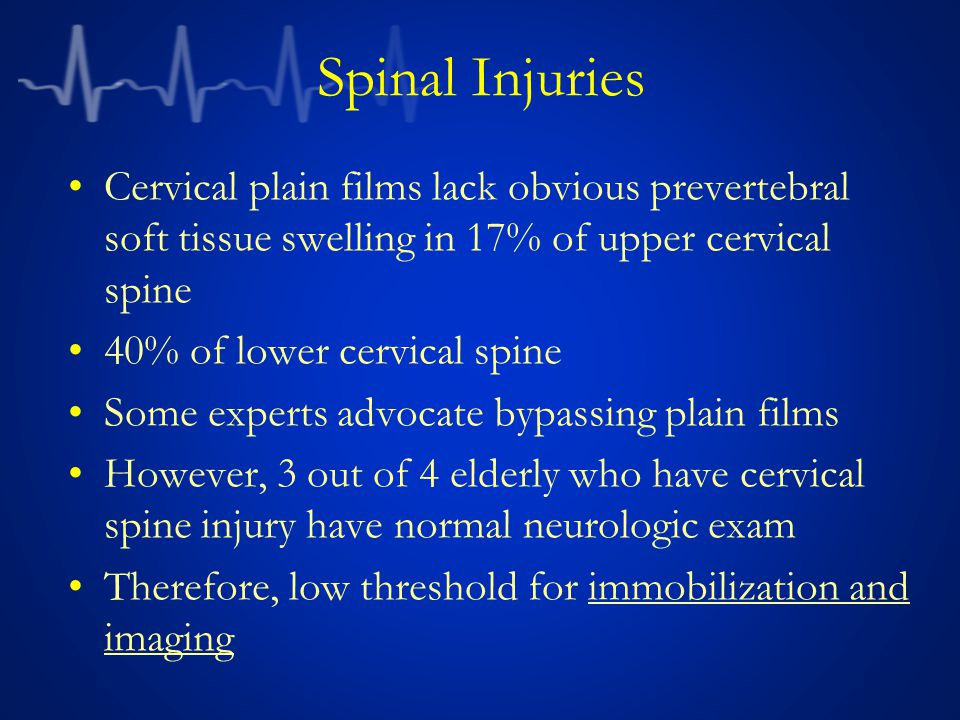 Spinal Injuries Cervical plain films lack obvious prevertebral soft tissue swelling in 17% of upper cervical spine.