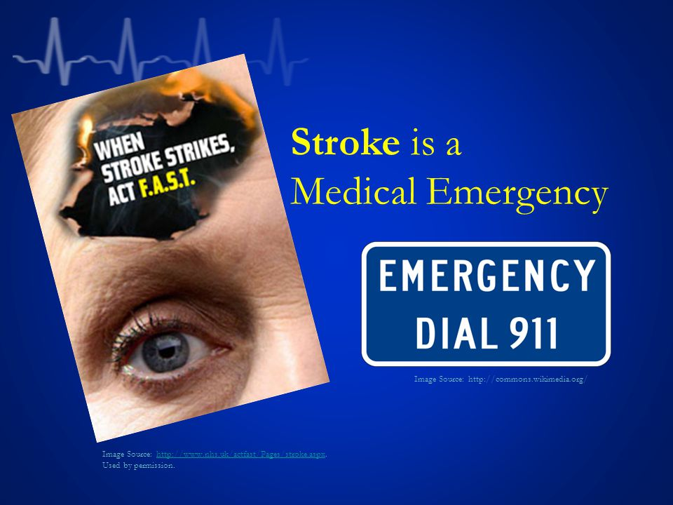Stroke is a Medical Emergency