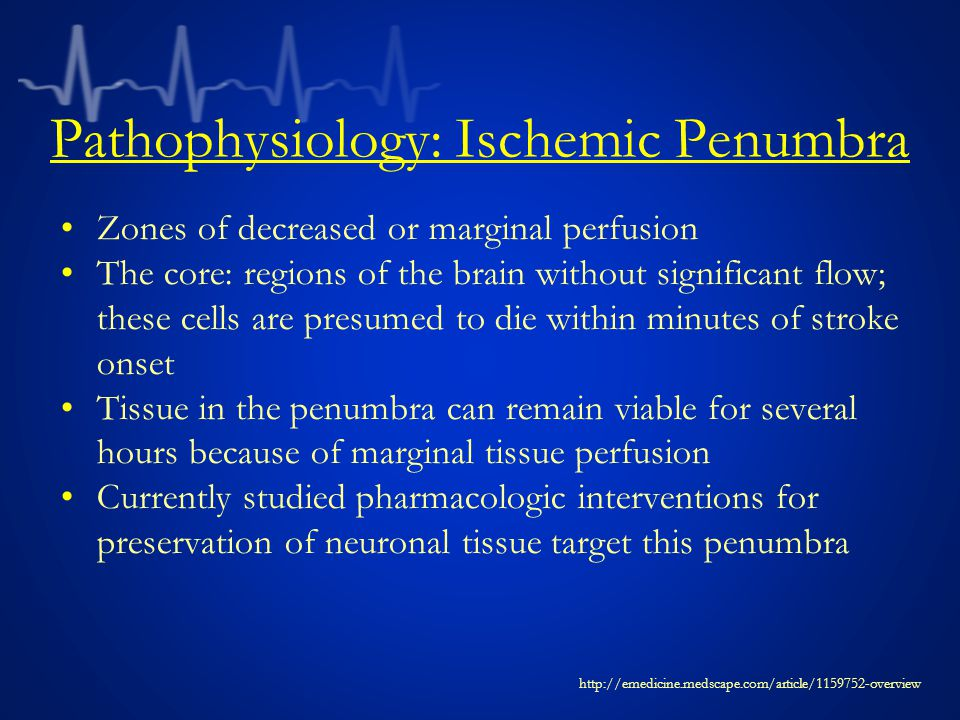 Pathophysiology: Ischemic Penumbra