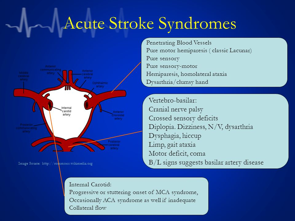Acute Stroke Syndromes