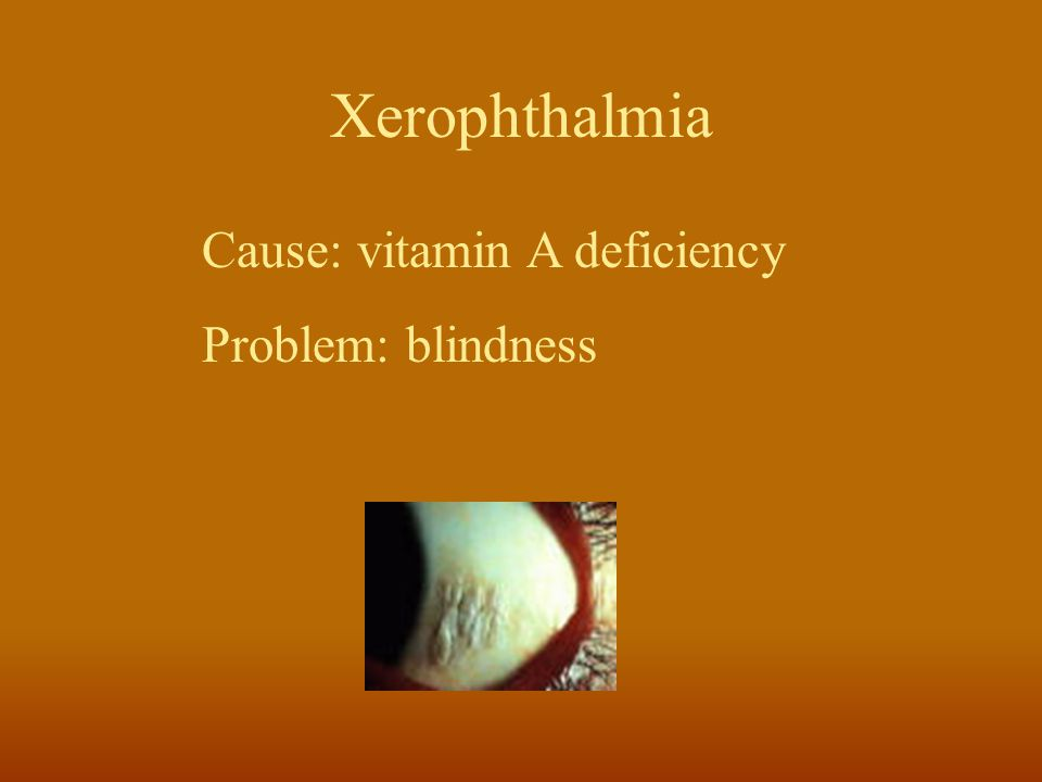 Xerophthalmia Cause: vitamin A deficiency Problem: blindness