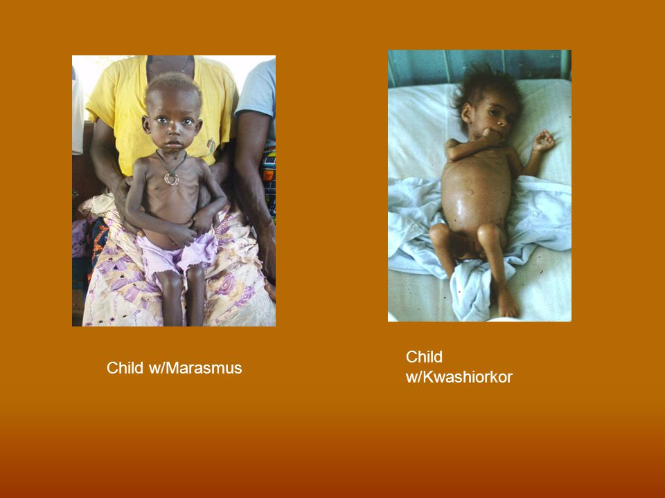 Child w/Kwashiorkor Child w/Marasmus