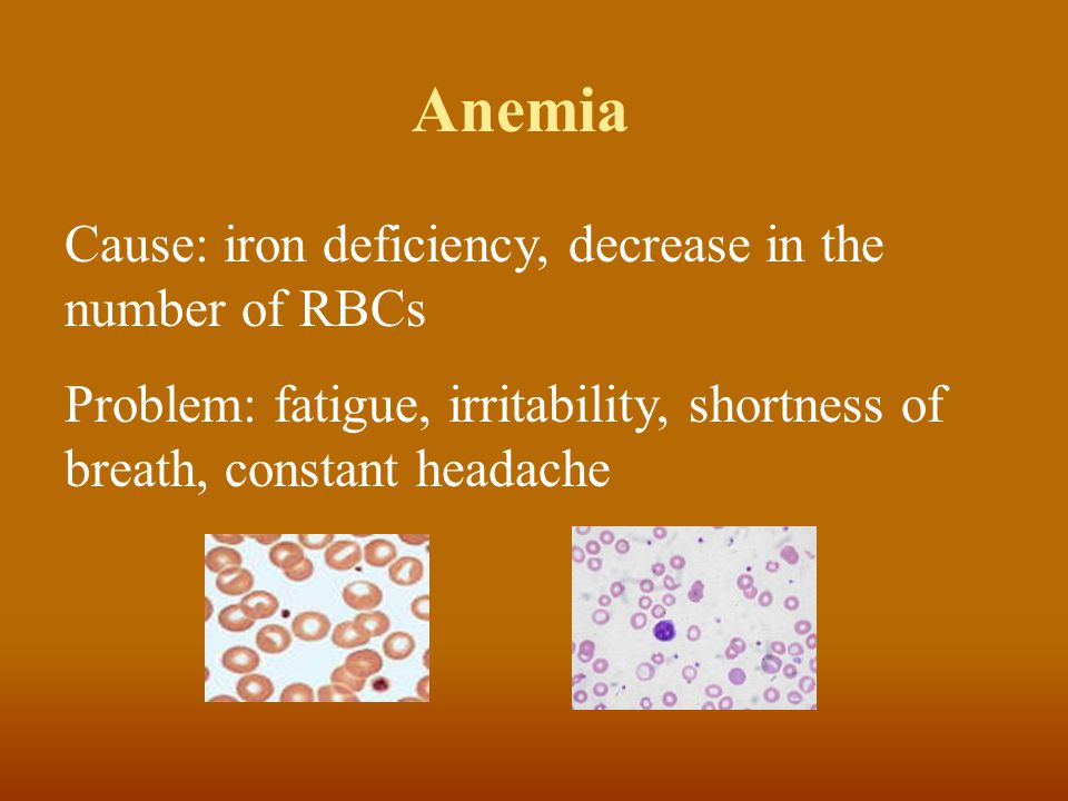 Anemia Cause: iron deficiency, decrease in the number of RBCs