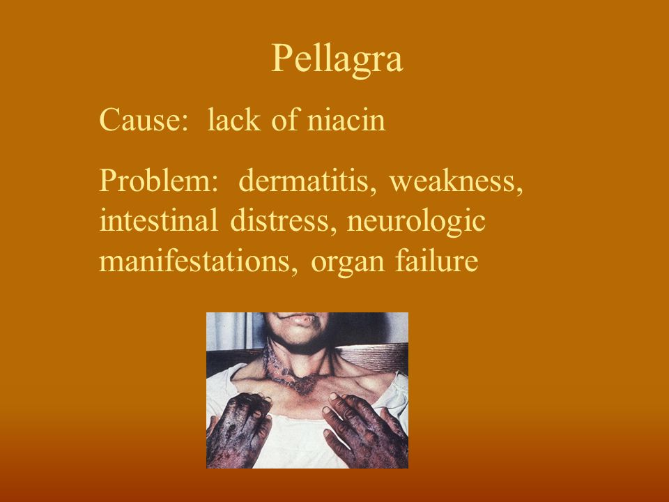 Pellagra Cause: lack of niacin