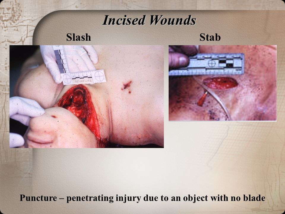 Incised Wounds Slash Stab