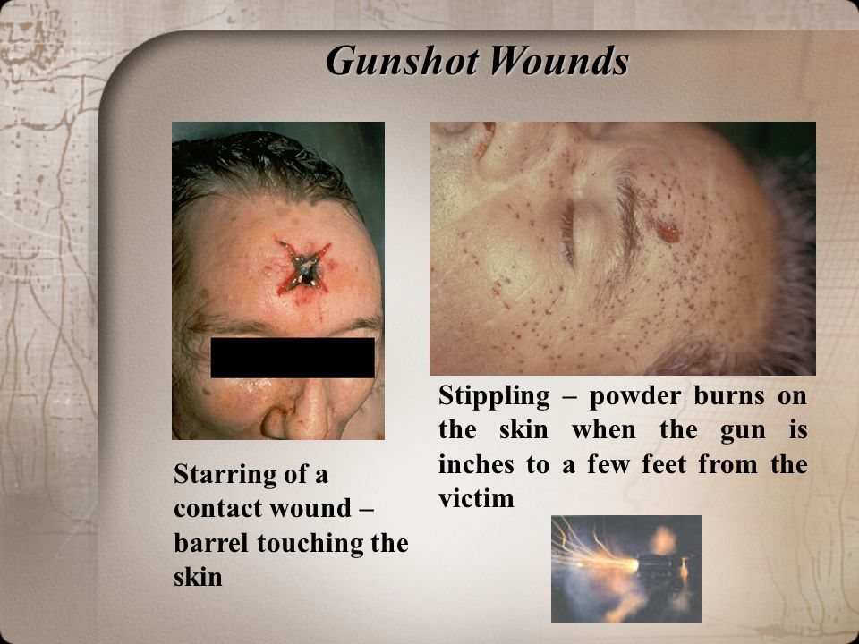Gunshot Wounds Stippling – powder burns on the skin when the gun is inches to a few feet from the victim.