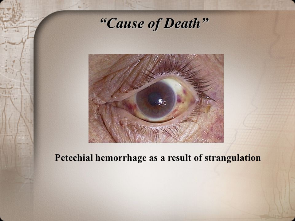 Cause of Death Petechial hemorrhage as a result of strangulation