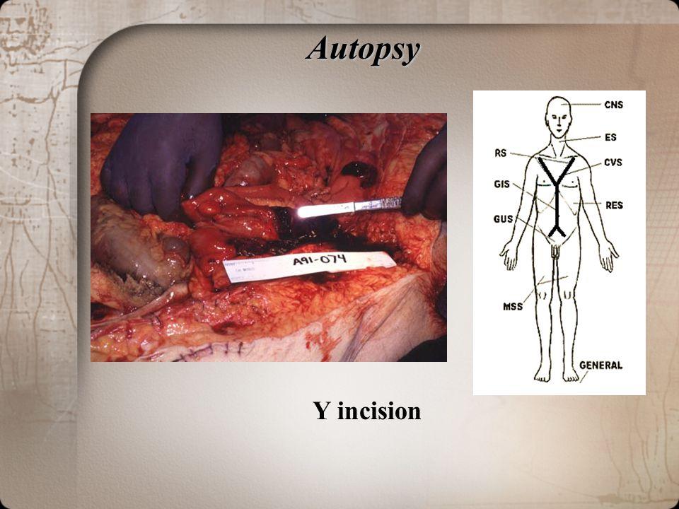 Autopsy Y incision