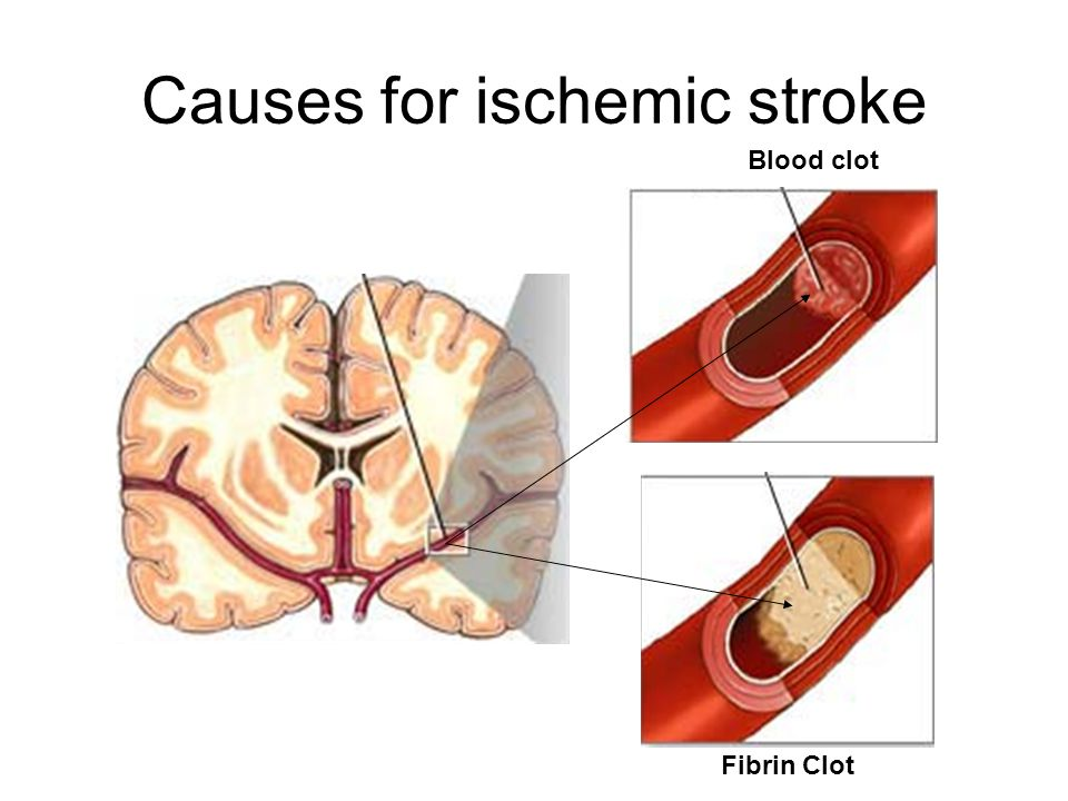 Causes for ischemic stroke