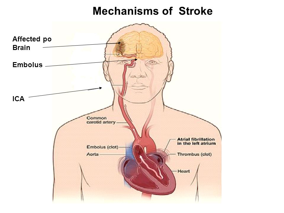 Mechanisms of Stroke Affected portion of the Brain Embolus ICA