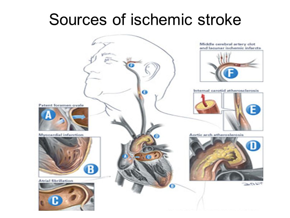 Sources of ischemic stroke