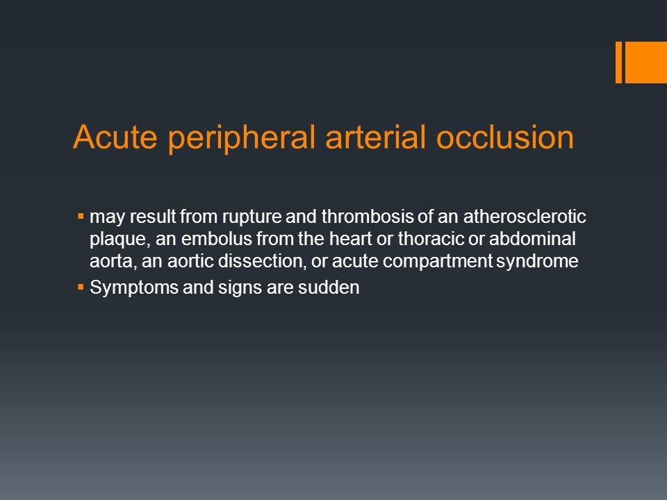 Acute peripheral arterial occlusion