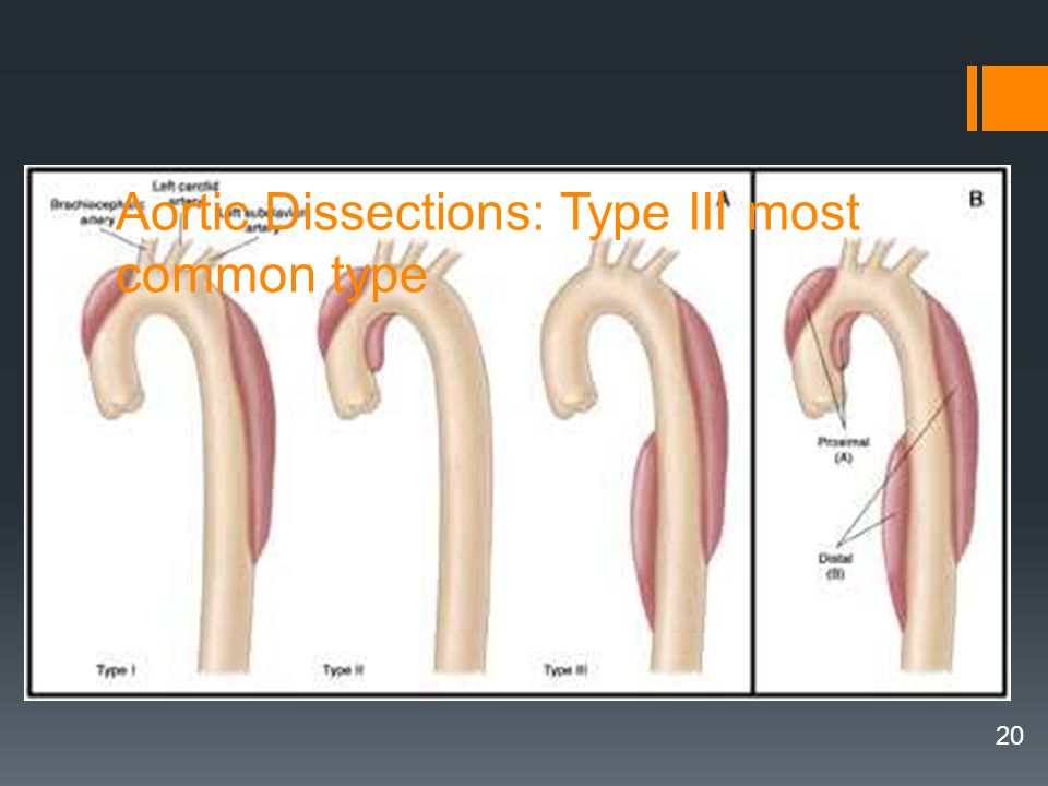 Aortic Dissections: Type III most common type