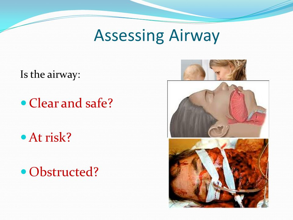 Assessing Airway Is the airway: Clear and safe At risk Obstructed