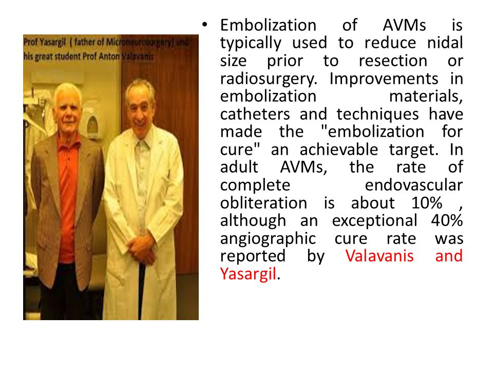 Embolization of AVMs is typically used to reduce nidal size prior to resection or radiosurgery.