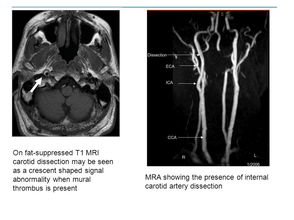 On fat-suppressed T1 MRI carotid dissection may be seen as a crescent shaped signal abnormality when mural thrombus is present