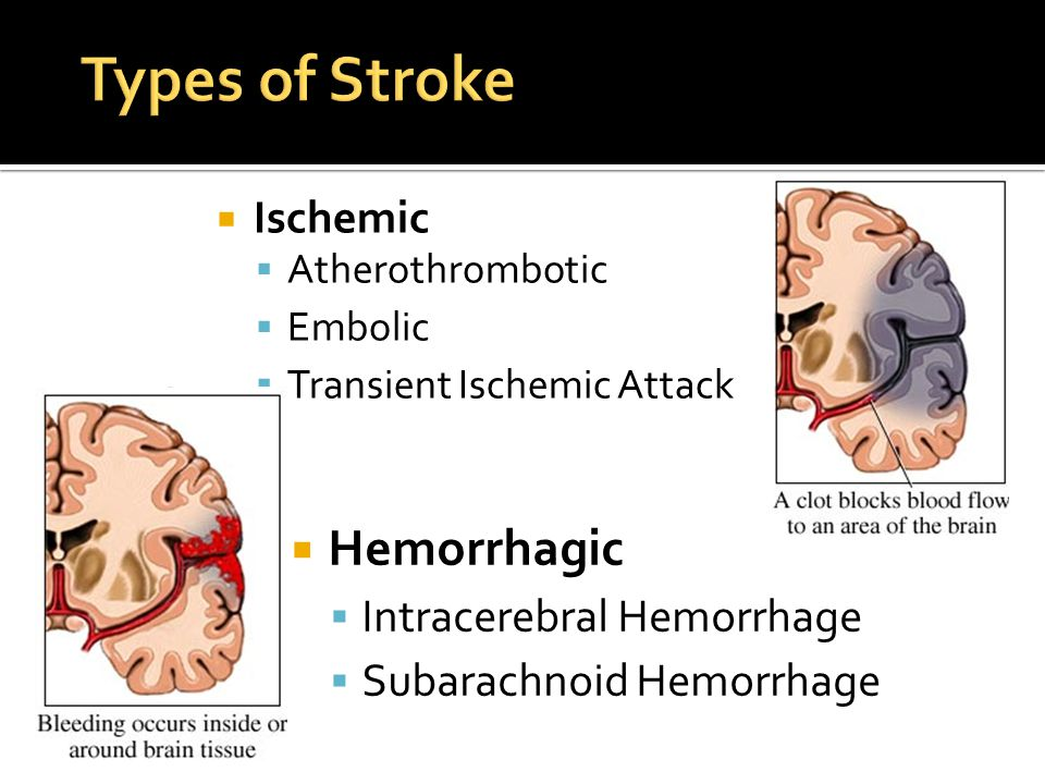 Types of Stroke Hemorrhagic Ischemic Intracerebral Hemorrhage