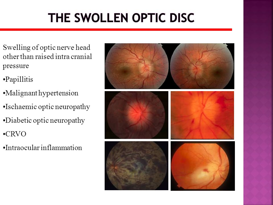 The swollen optic disc Swelling of optic nerve head other than raised intra cranial pressure. Papillitis.