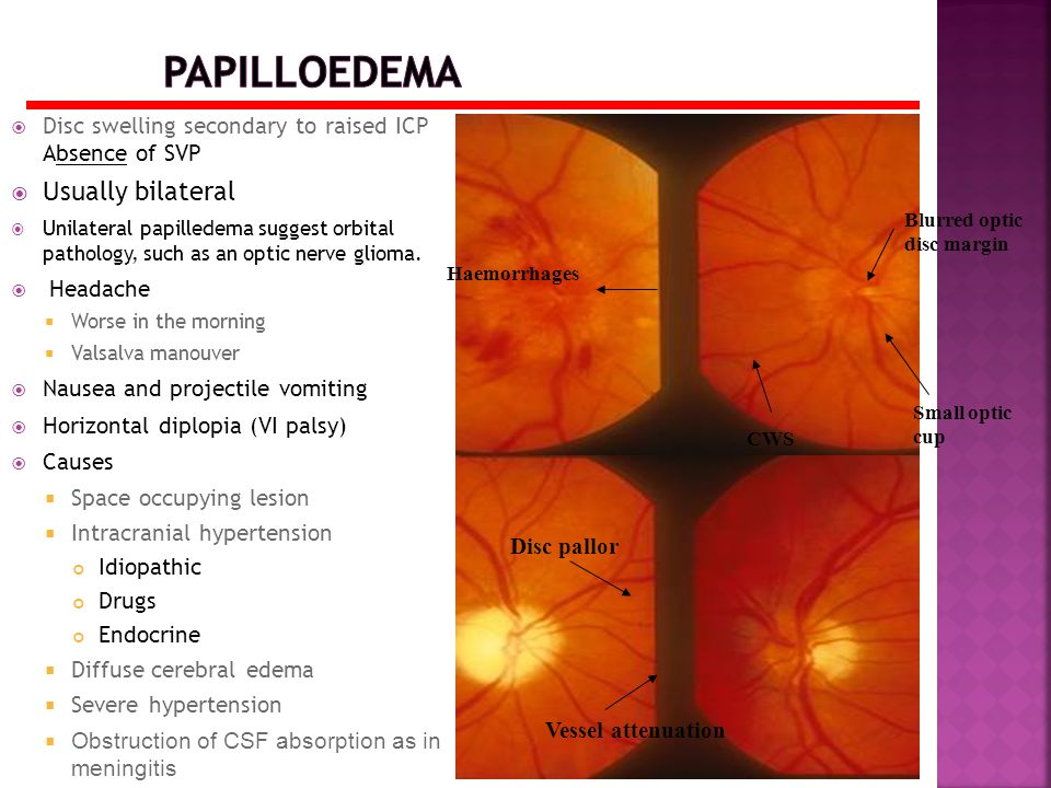 Papilloedema Usually bilateral