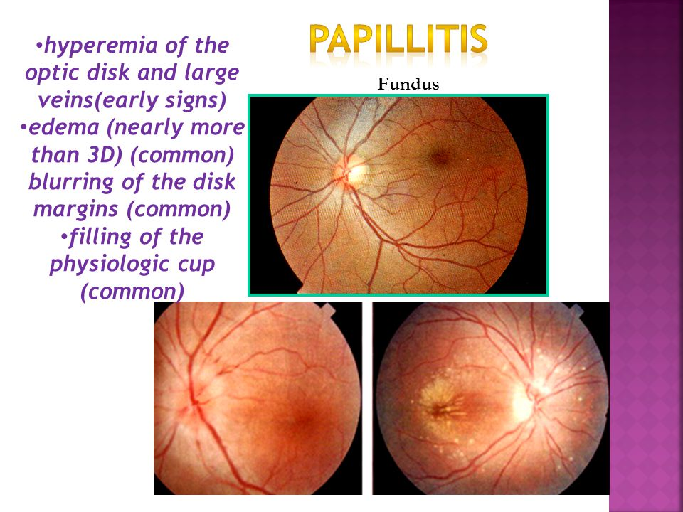 Papillitis hyperemia of the optic disk and large veins(early signs)