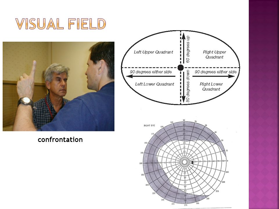 Visual field confrontation