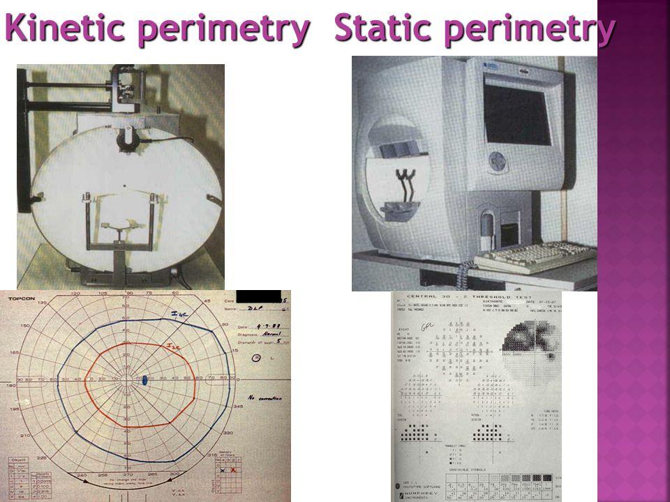 Kinetic perimetry Static perimetry