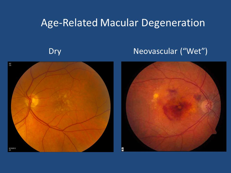 Age-Related Macular Degeneration Dry Neovascular ( Wet )