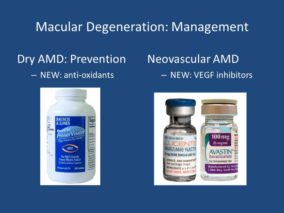 Macular Degeneration: Management