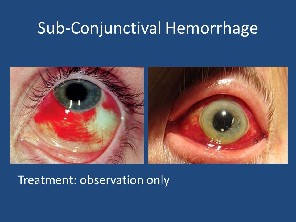 Sub-Conjunctival Hemorrhage