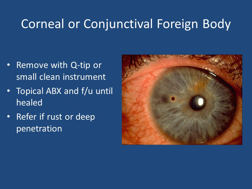 Corneal or Conjunctival Foreign Body