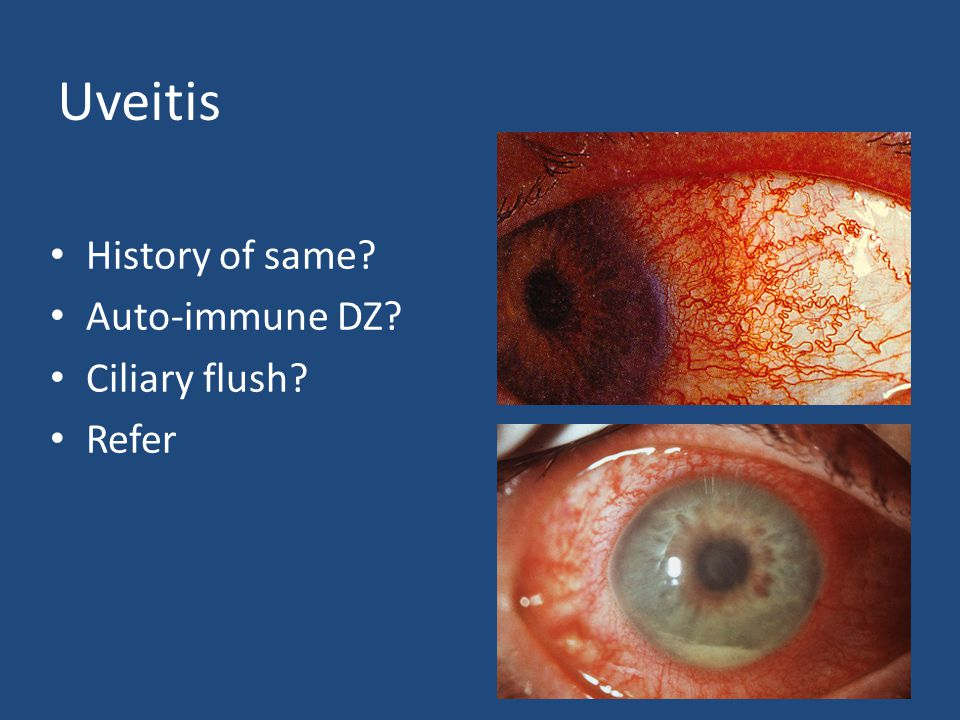 Uveitis History of same Auto-immune DZ Ciliary flush Refer