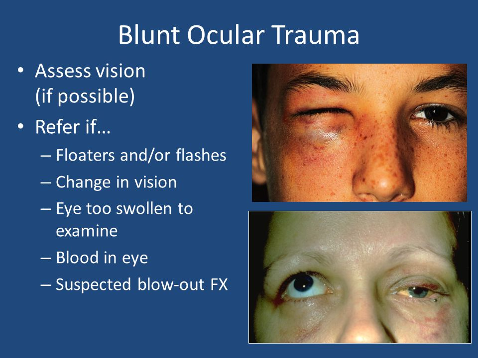 Blunt Ocular Trauma Assess vision (if possible) Refer if…