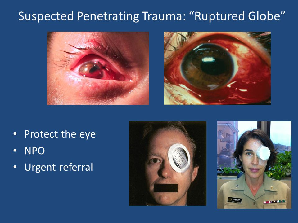 Suspected Penetrating Trauma: Ruptured Globe