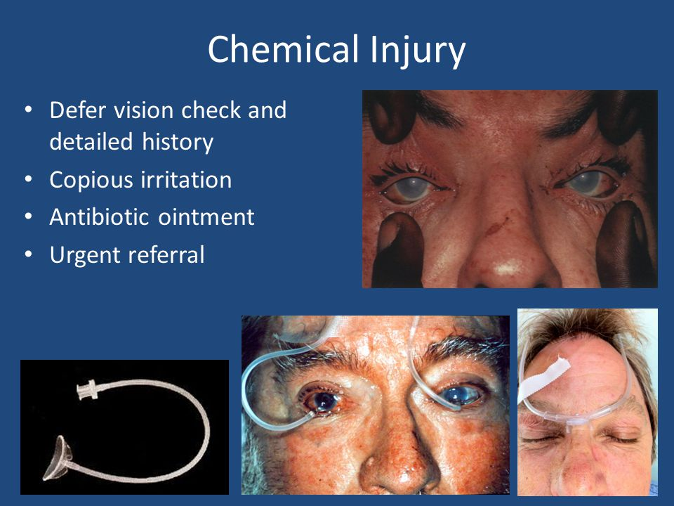 Chemical Injury Defer vision check and detailed history