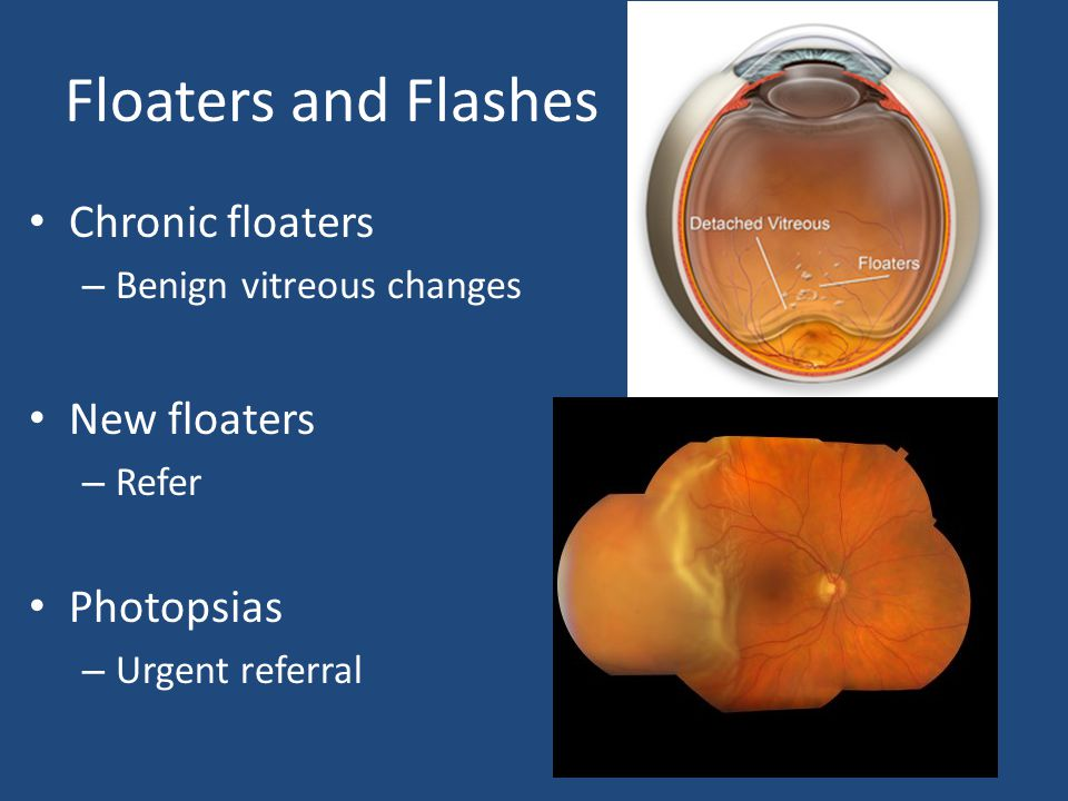 Floaters and Flashes Chronic floaters New floaters Photopsias