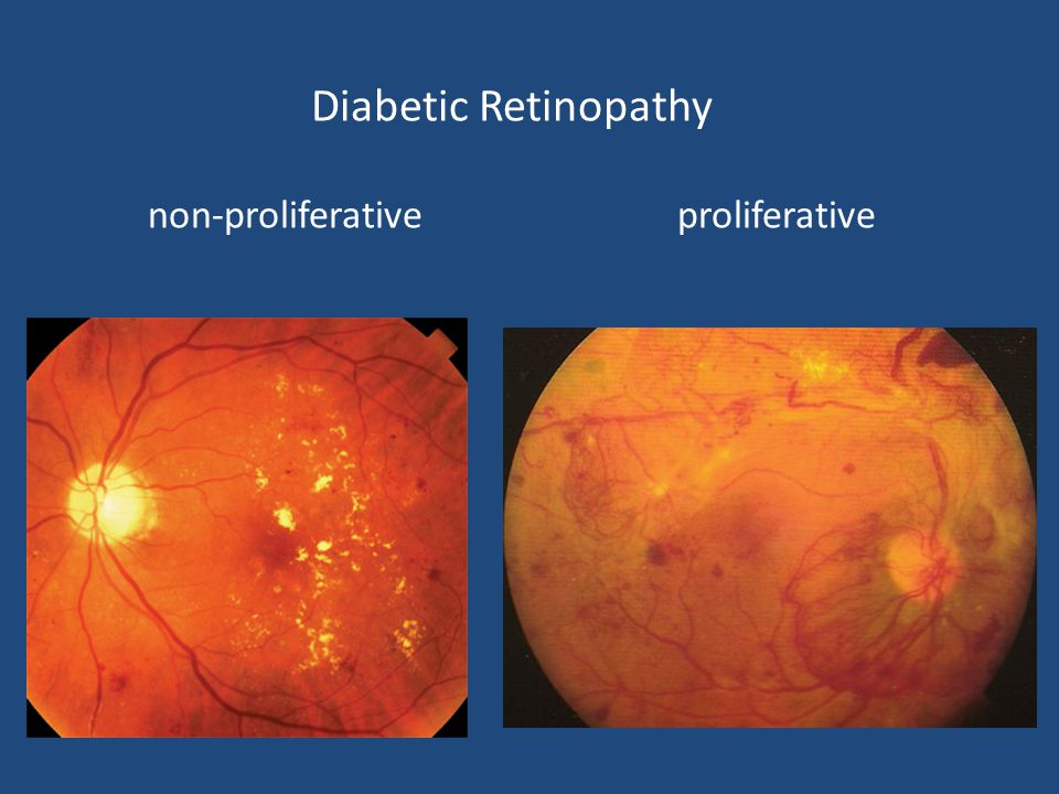 Diabetic Retinopathy non-proliferative proliferative