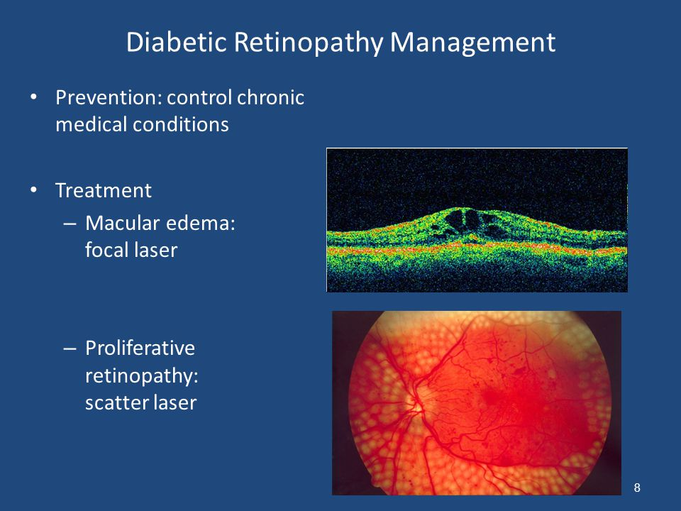 Diabetic Retinopathy Management