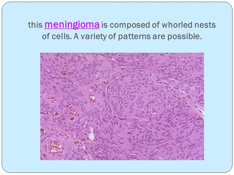 this meningioma is composed of whorled nests of cells