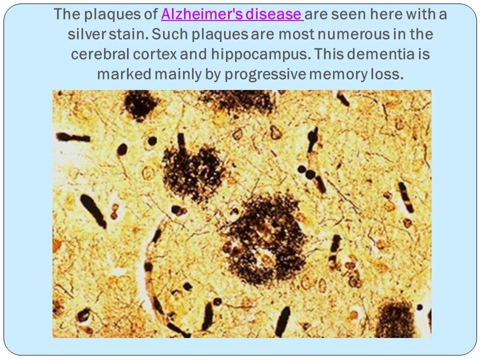The plaques of Alzheimer s disease are seen here with a silver stain