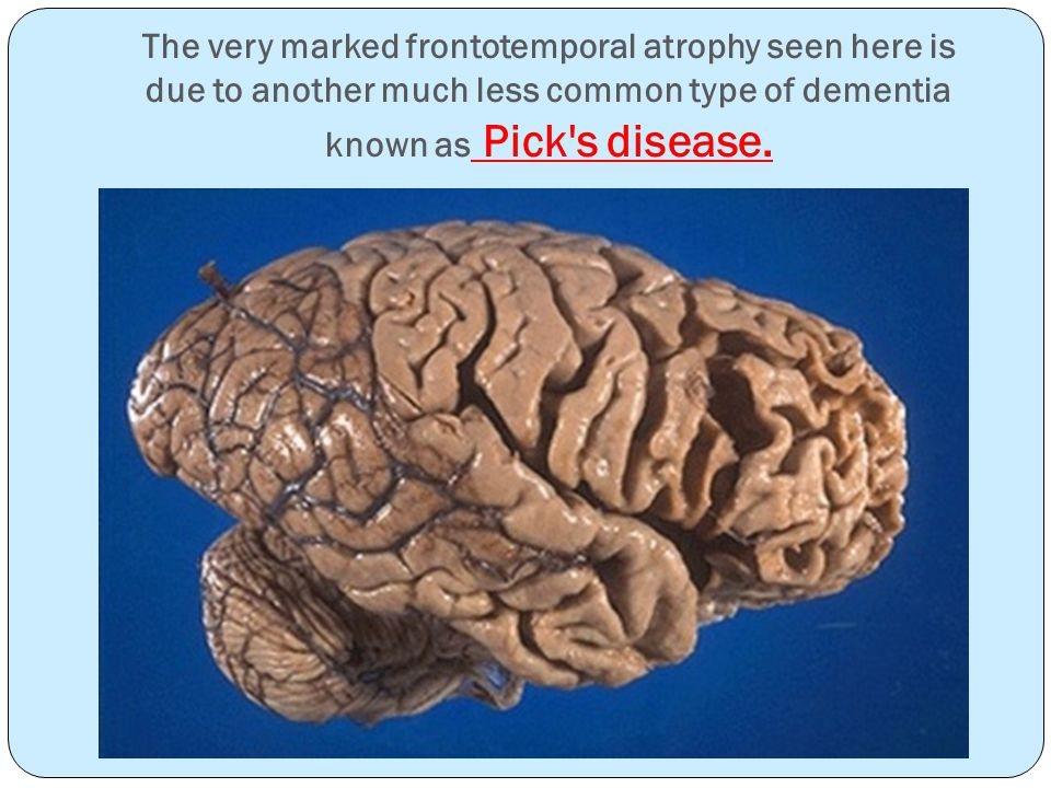 The very marked frontotemporal atrophy seen here is due to another much less common type of dementia known as Pick s disease.