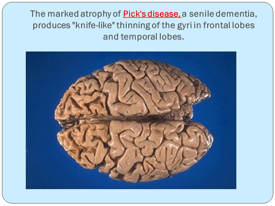 The marked atrophy of Pick s disease, a senile dementia, produces knife-like thinning of the gyri in frontal lobes and temporal lobes.